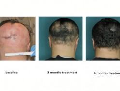 研究發現新藥可能讓斑禿患者毛髮再生